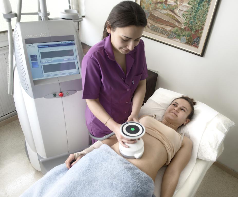 Ultrashape ile zayıflama