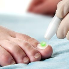 Mantar enfeksiyon tedavisi